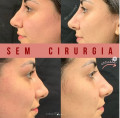 dra-danielle-maya-harmonizacao-facial-botox